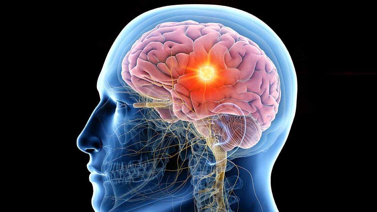 Epilepsy brain scan